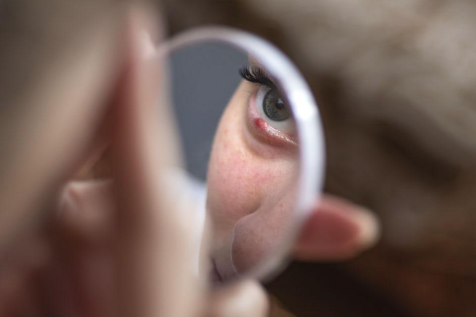Nainen jolla näärännäppy silmässä