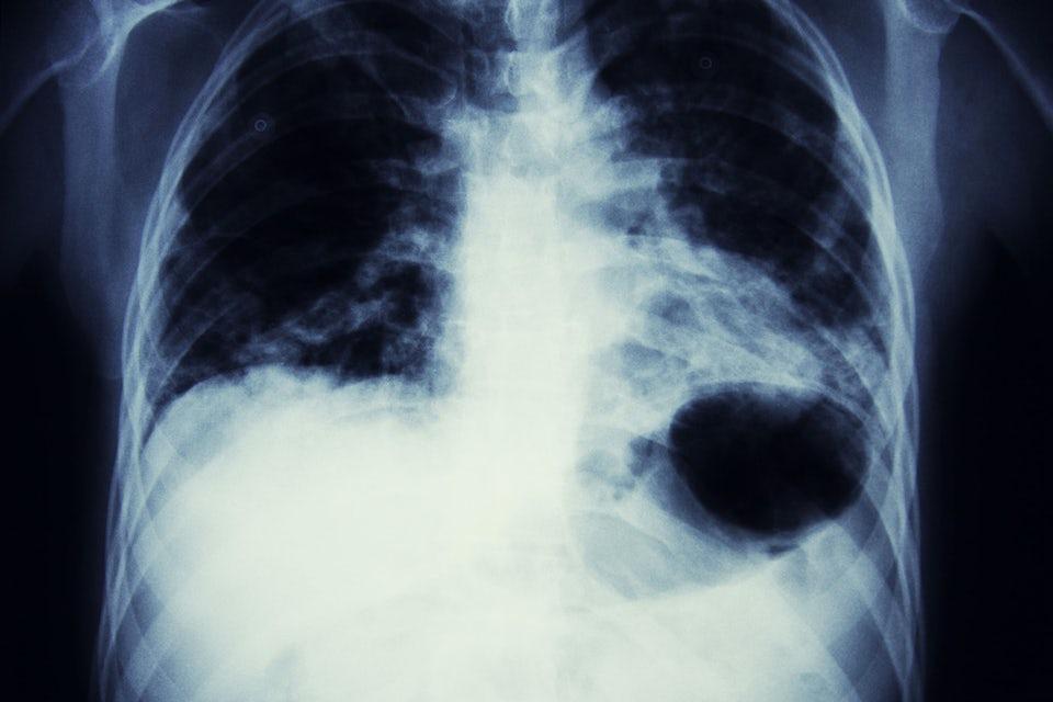 Rökning är lungornas värsta fiende