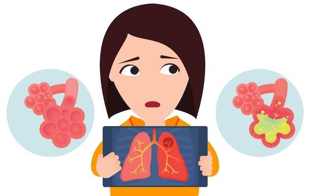 Lungebetennelse - væske og puss  i aveolene