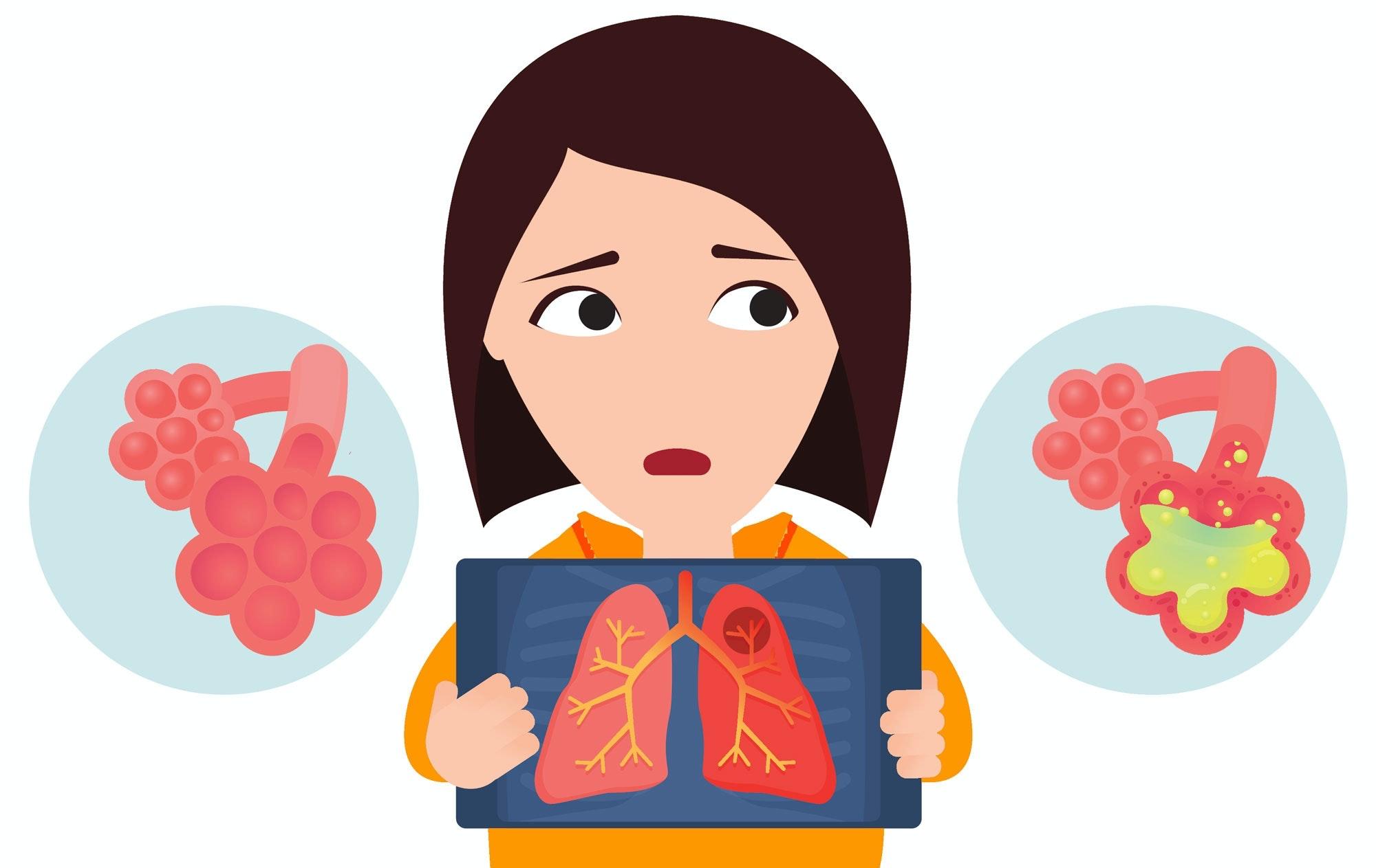 kan man have lungebetændelse uden feber
