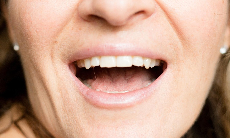 brännande känsla i munnen av stress