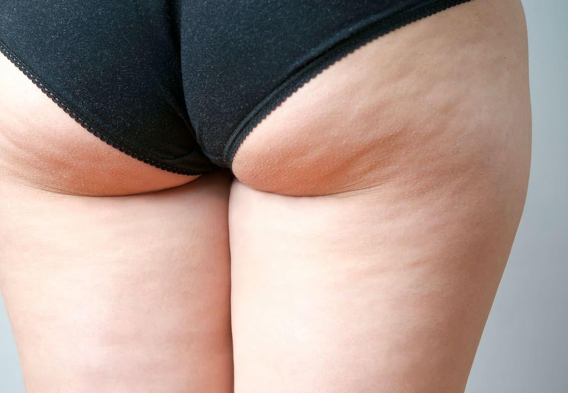 få bort fett på benen