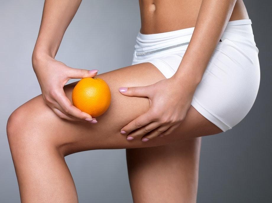 försvinner celluliter vid viktnedgång