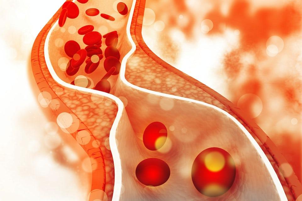 Kolesterol i blodbane